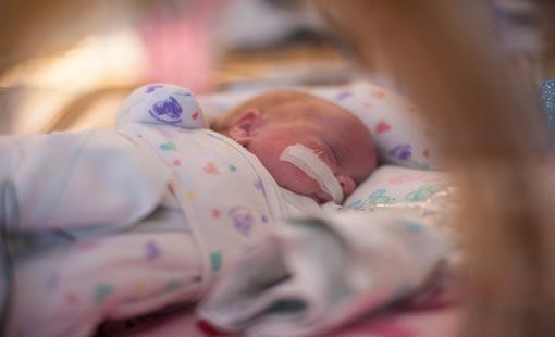 الولادة قبل الأوان