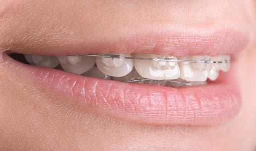 هذه هي أكثر عيوب الأسنان انتشاراً