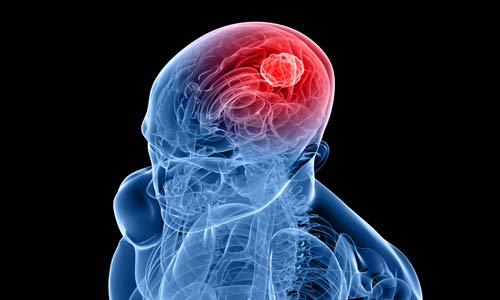 أدوية جديدة تخفف من خطر السكتة الدماغية