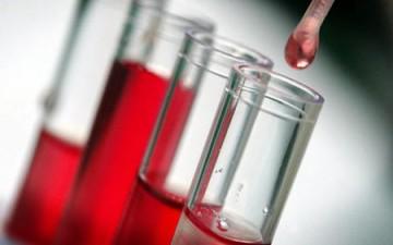 خبراء يطورون اختباراً للدم لكشف إصابات الدماغ