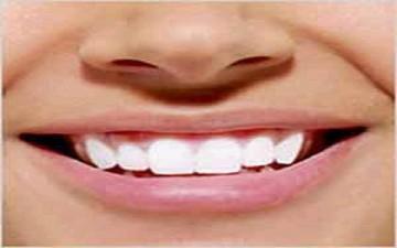 وصفة سرية لتبييض الأسنان