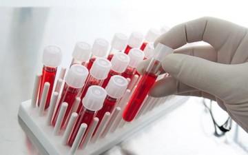 تحليل الدم عند انقطاع الطمث