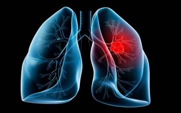 سرطان الرئة وأنواعه.. حقائق بالأرقام