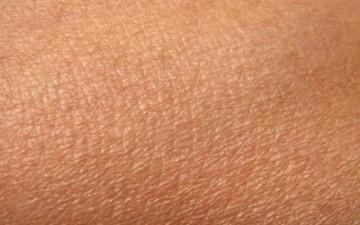 الصيام علاج فعال للأمراض الجلدية