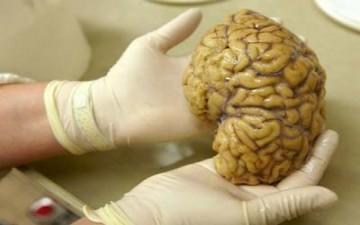 واشنطن تعد لبناء خريطة للدماغ البشري